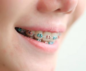 Children's Metal & Clear Braces in Portland | Sprout