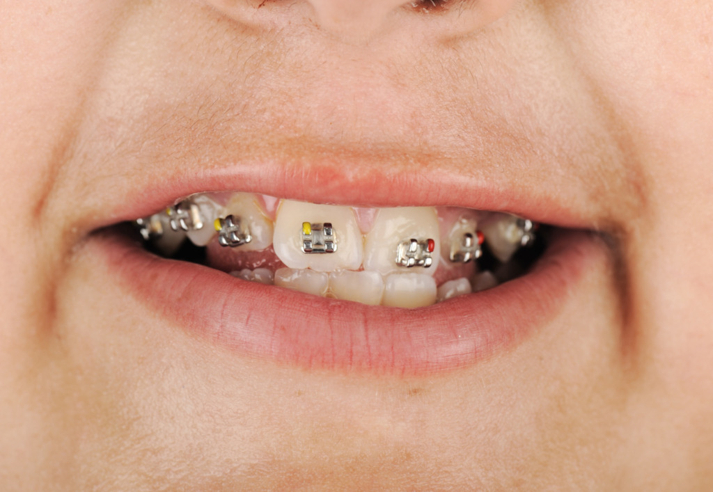 When can you get braces?